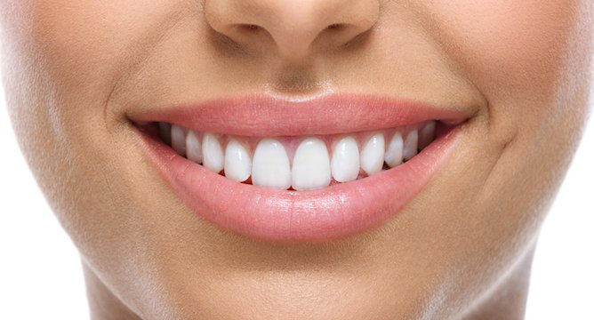 The Top Teeth Whiteners on Influenster