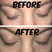 Rapidlash RapidLash Eyelash Enhancing Serum uploaded by Jen M.