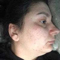 Clean & Clear® Advantage® Acne Spot Treatment uploaded by Sanja S.