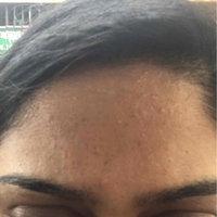 Mario Badescu Acne Facial Cleanser, 6 fl. oz. uploaded by Rose P.