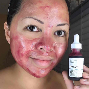 The Ordinary AHA + BHA 2% Peeling Solution uploaded by Marie H.