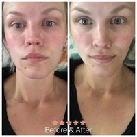 Skyn Iceland Hydro Cool Firming Eye Gels uploaded by Claire I.