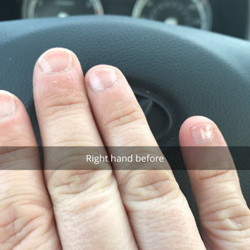 NAIL AID Nail-Aid Keratin 3-Day Growth, 0.55 fl oz uploaded by Tracy G.