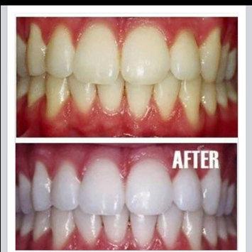 AP-24 Whitening Fluoride Toothpaste uploaded by Liz G.