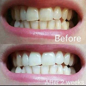 AP-24 Whitening Fluoride Toothpaste uploaded by Peyton C.