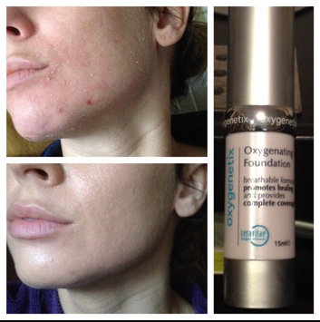 Photo of Oxygenetix Oxygenating Foundation uploaded by Tiffanie H.
