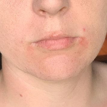Neutrogena Oil-Free Acne Wash uploaded by Heather L.