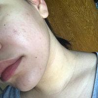 Murad Murad Post-Acne Spot Lightening Gel 1 oz uploaded by Laura -.