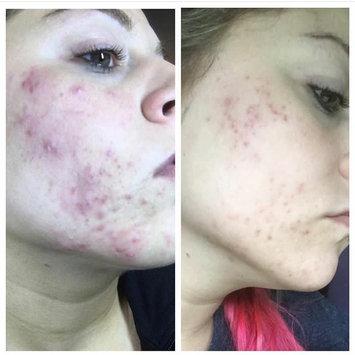 Sunday Riley U.F.O. Ultra-Clarifying Face Oil uploaded by Lesli P.