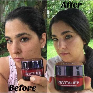 L'Oréal Paris RevitaLift® Triple Power Deep Acting Moisturizer uploaded by Ana S.