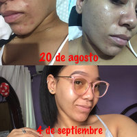 Aztec Secret Indian Healing Clay Deep Pore Cleansing uploaded by L E.