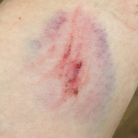 Neosporin Plus Pain Relief uploaded by Jen S.