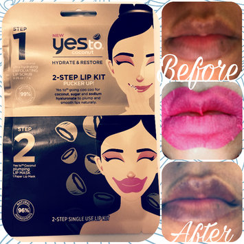 Photo of Yes To Coconut 2 Step Single Use Lip Kit Pucker Up uploaded by SueAnn N.