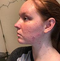 Neutrogena Rapid Clear Acne System uploaded by Ashley N.