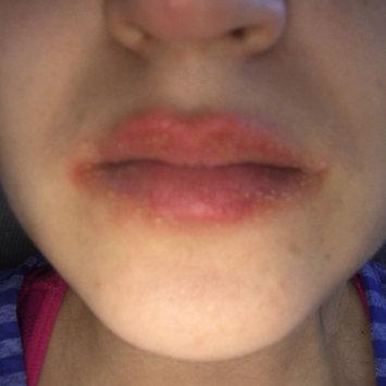 Photo of Aquaphor® Lip Repair uploaded by Cristina M.