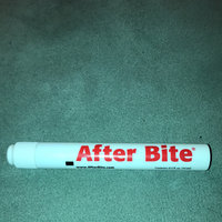 After Bite The Itch Eraser for Insect Bites uploaded by deidre f.