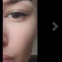 Mederma® Advanced Scar Gel uploaded by Ane K.