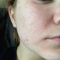 Neutrogena® Oil-Free Acne Wash uploaded by Amber M.