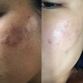Photo of The Acne.org Regimen - Complete Acne Treatment Kit uploaded by Suphitsara B.