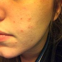 Yes to Coconut Ultra Hydrating Facial Souffle Moisturizer uploaded by Stephanie B.
