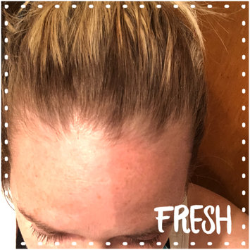 Photo of Suave Professionals® Keratin Infusion Dry Shampoo uploaded by Stephanie B.