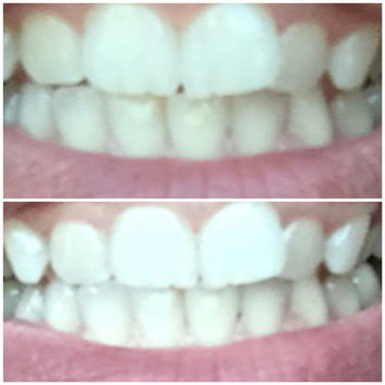 Photo of AP-24 Whitening Fluoride Toothpaste uploaded by Amanda A.