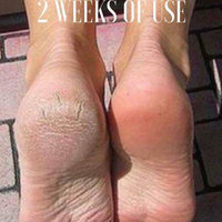 Sole Solution Foot Treatment 3 Packs uploaded by Amanda A.