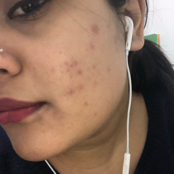 Photo of Sunday Riley U.F.O. Ultra-Clarifying Face Oil uploaded by Tasneem A.