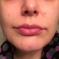 Philosophy Ultimate Miracle Worker Lip Fix uploaded by Jen K.