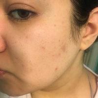 Peter Thomas Roth De-Spot Skin Brightening Corrector uploaded by Sareena O.