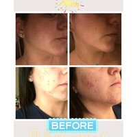 Rodan And Fields Before And After Unblemish