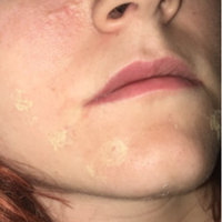 Mario Badescu Drying Cream uploaded by Megan N.