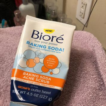Photo of Bioré Baking Soda Acne Scrub uploaded by Athena G.