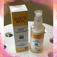 Burt's Bees Acne Daily Moisturizing Lotion uploaded by Himali B.