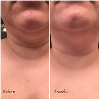 Perricone MD Cold Plasma Plus Neck & Chest Broad Spectrum SPF 25 uploaded by Suzanne M.