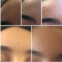 Neutrogena® Oil-Free Acne Wash Daily Scrub uploaded by Ashley B.