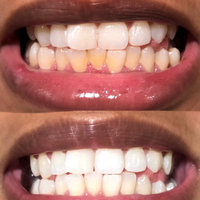 GO SMiLE Teeth Whitening Gel, 3.4 oz uploaded by Lismely G.
