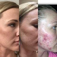 ProactivMD® 3-Piece Acne System uploaded by Kathryn C.