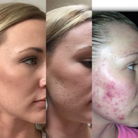 ProactivMD® 3-Piece Acne System uploaded by Kathryn C.