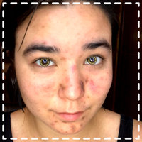 ProactivMD® 3-Piece Acne System uploaded by Kimberly T.