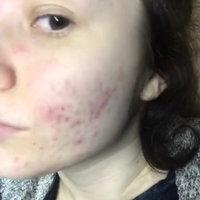 Clean & Clear® Persa-gel® 10 Acne Medication uploaded by Trenadee S.
