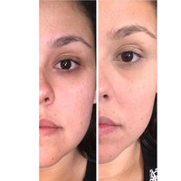 Dermablend Cover Foundation Creme SPF 30 uploaded by Desiree C.