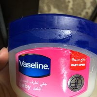 Vaseline® Jelly Baby uploaded by Amber Z.