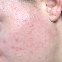 La Roche-Posay Effaclar Duo Acne Spot Treatment uploaded by Hayley D.