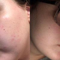 Yes To Tomatoes Detoxifying Charcoal Mud Mask uploaded by Ashley S.
