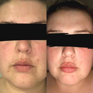Photo of Differin® Gel Acne Treatment 0.5 oz. Box uploaded by Robyn E.