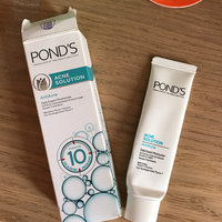 Pond's Daily Moisturizer Skin Whitening Oil Control Acne Blemish Black Spot uploaded by Maybelle A.