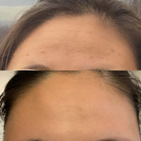 Glossier Solution Exfoliating Skin Perfector uploaded by Hans P.