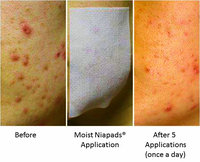 Niapads ® - Facial Pads for Acne and Acne Scars uploaded by Samatha P.