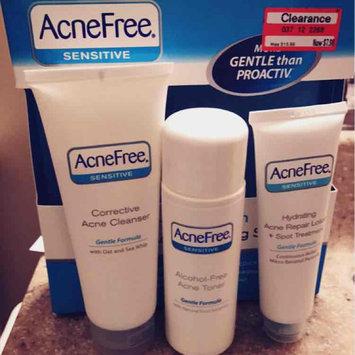 Photo of University Medical AcneFree 24 Hour Acne Clearing Sensitive Skin Kit, 1 set uploaded by Ashlee F.